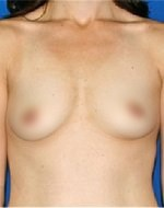 Before natural breast enlargement