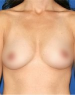 After natural breast enlargement