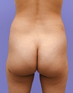 Before Liposculpture of the buttocks