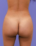 After Liposculpture of the buttocks