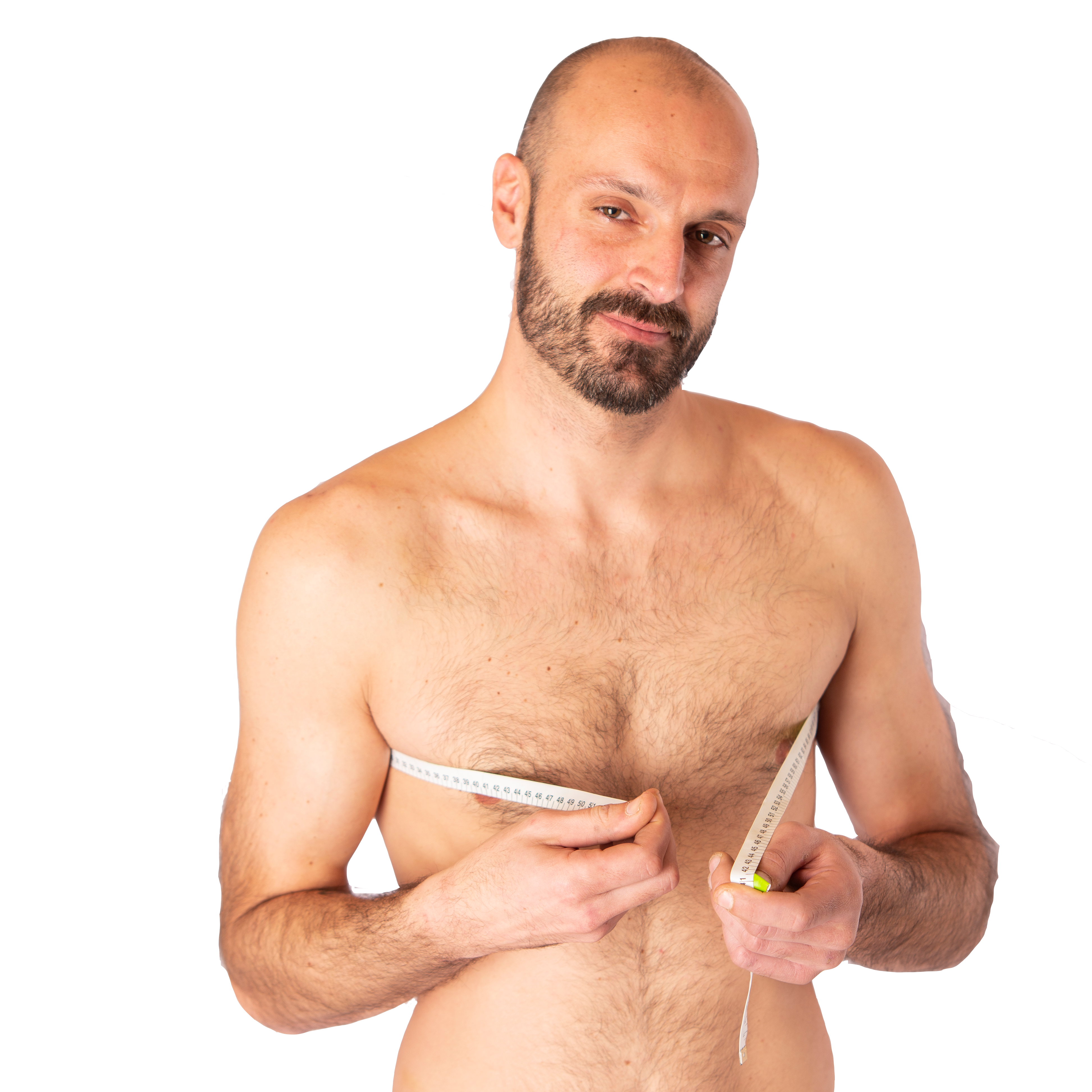 Male Breast Reduction - Gynecomastia: Male Breast Reduction - Gynecomastia