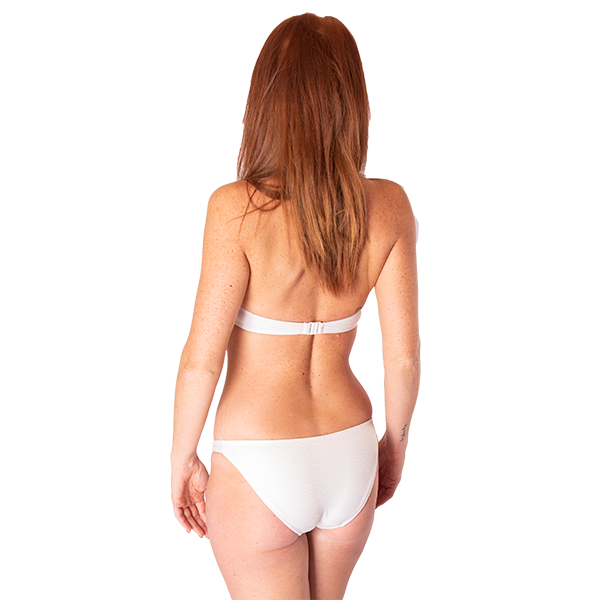 Buttock fold correction
