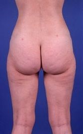 After liposuction of hips and thighs