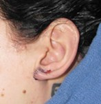 After Earlobe Surgery