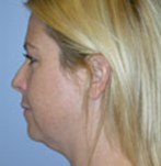 Before Double Chin Liposculpture