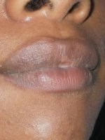 After Lip Correction