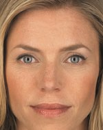 After a liquid facelift with injectables