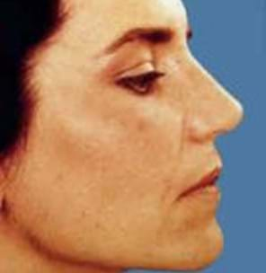 After refining the nostrils