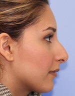 Before refining the nose tip and correction nose bridge