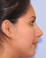 After refining nose tip and correcting nose bridge