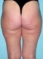 Before liposuction of the buttocks