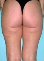 After liposuction of the buttocks