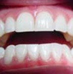 After Dental Bleaching