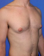 Before Gynecomastia