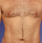 After Male Liposculpture