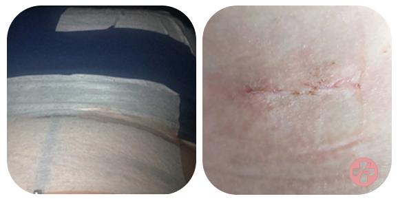 Verband en litteken