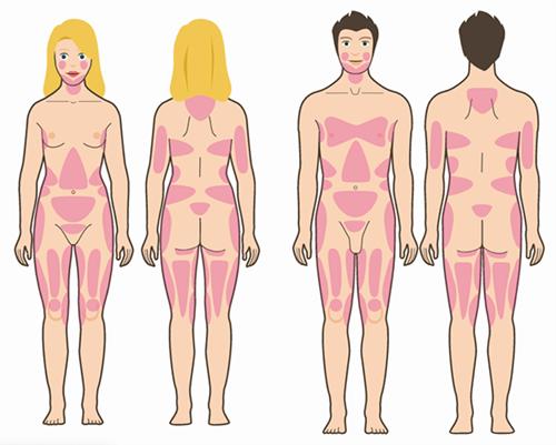 liposuktion verschiedenen korperteile