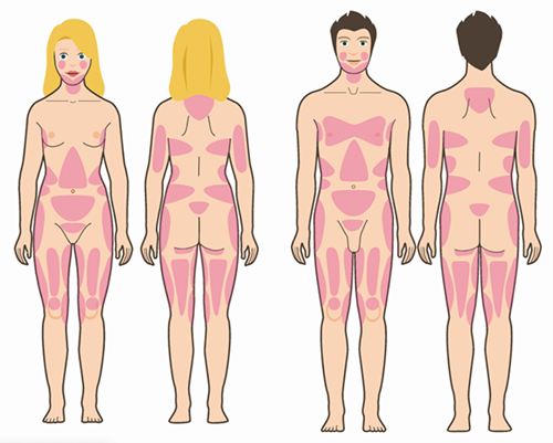 différentes parties du corps wellness kliniek