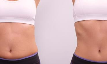 Which body parts can be treated with liposuction?