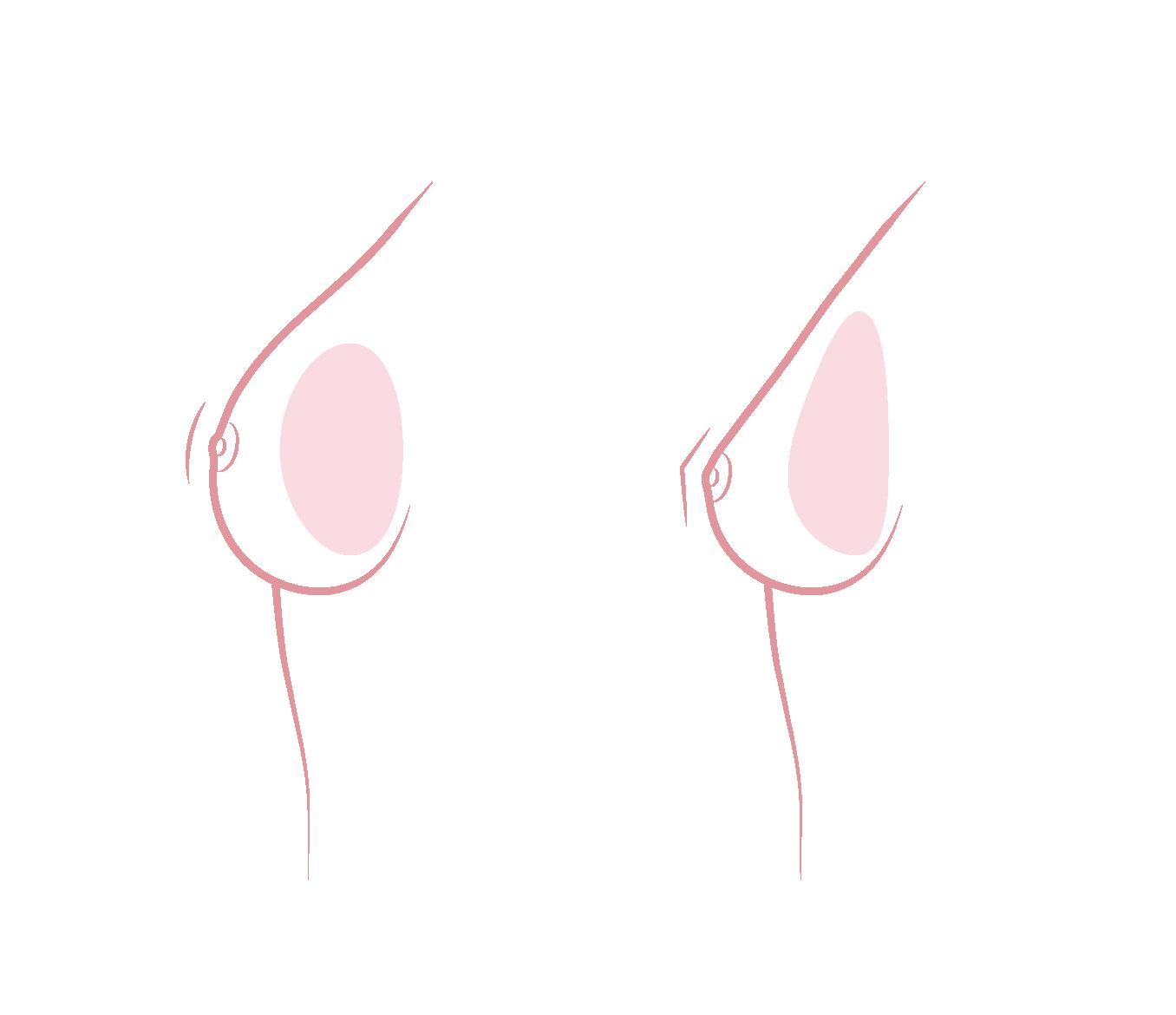 vorm borstimplantaten